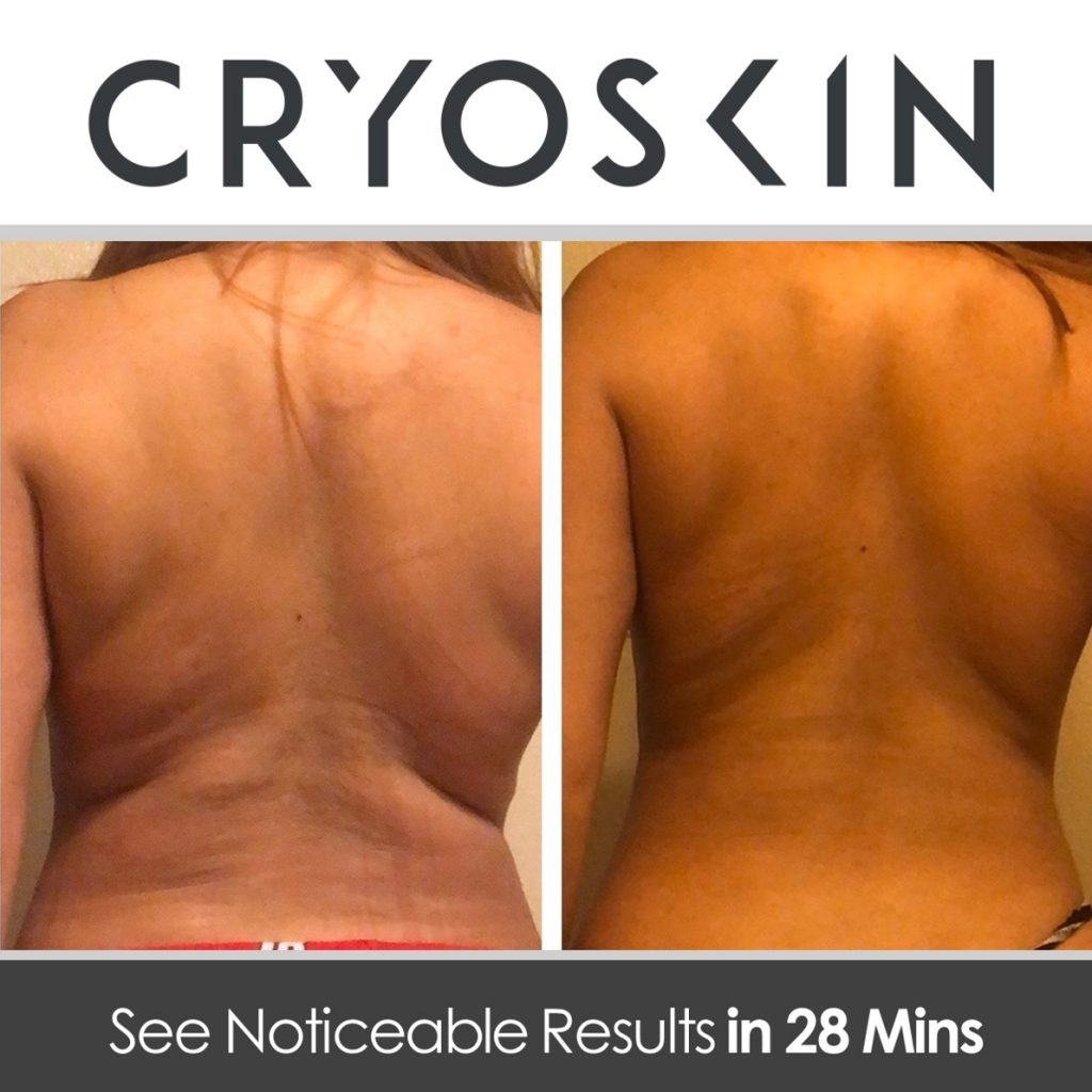 cryoskin back results
