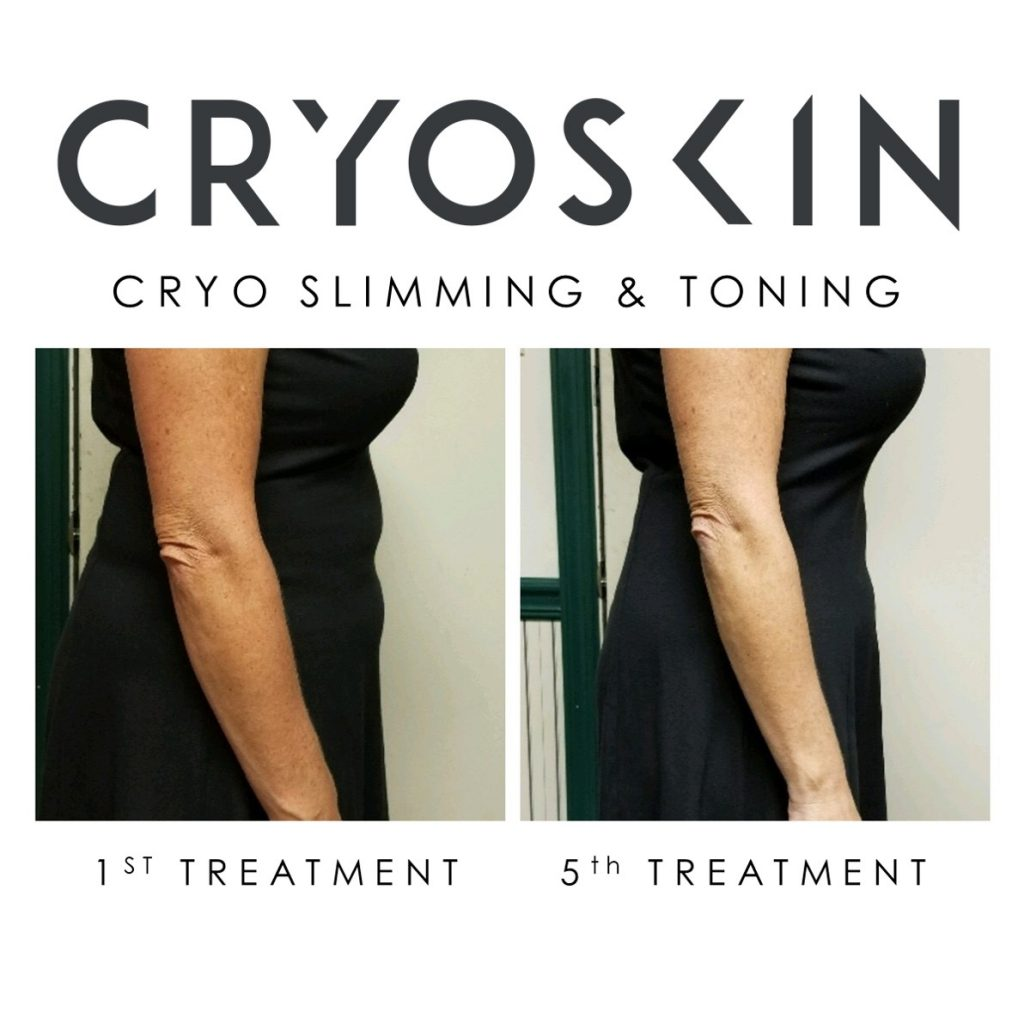 cryoskin before and after arms